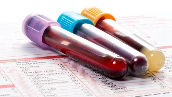 Studi di China Sebut Golongan Darah A Lebih Rentan Terinfeksi Corona